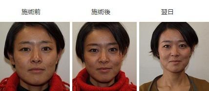 美容鍼効果1