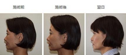 美容鍼効果2